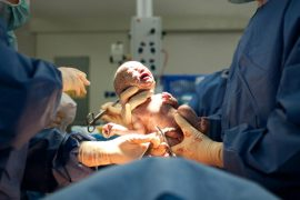 Baby delivered via caesarean section